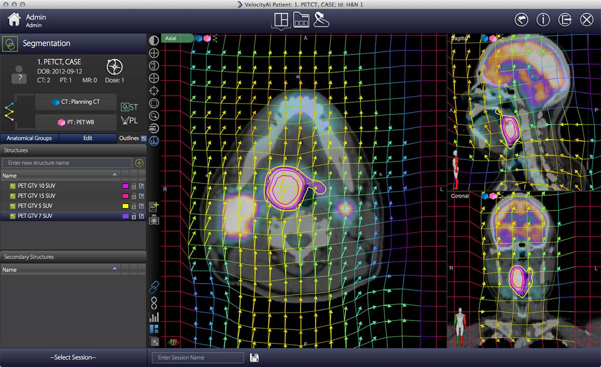 VelocityDeformScreen01