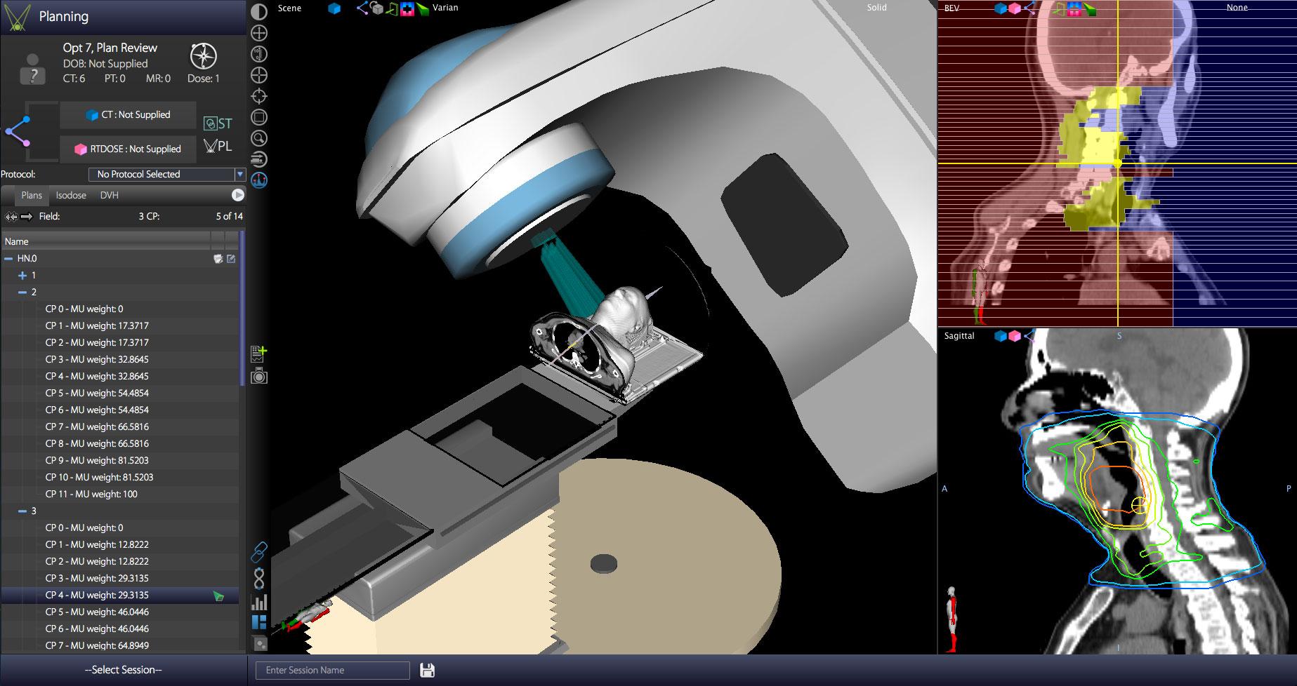 VelocityReviewScreen01